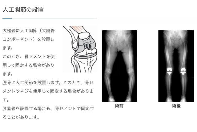 右膝関節の人工骨置換手術を受けました